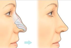 nose-correction1-300x202