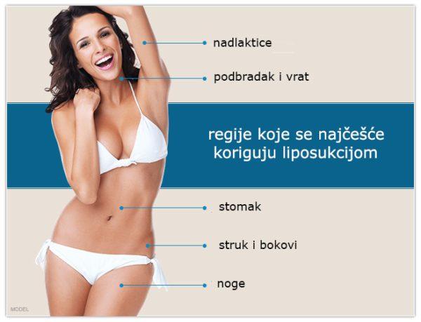 Da li je liposukcija korisna ?