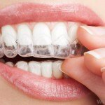 tooth-whitening-tray